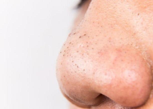Sự hình thành và cách chăm sóc da có mụn đầu đen