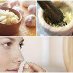 10 phương pháp trị mụn thâm dân gian hiệu quả